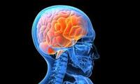 laminine Alzheimer