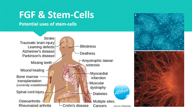 what stem-cells can heal